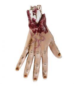 Blodig afrevet hånd
